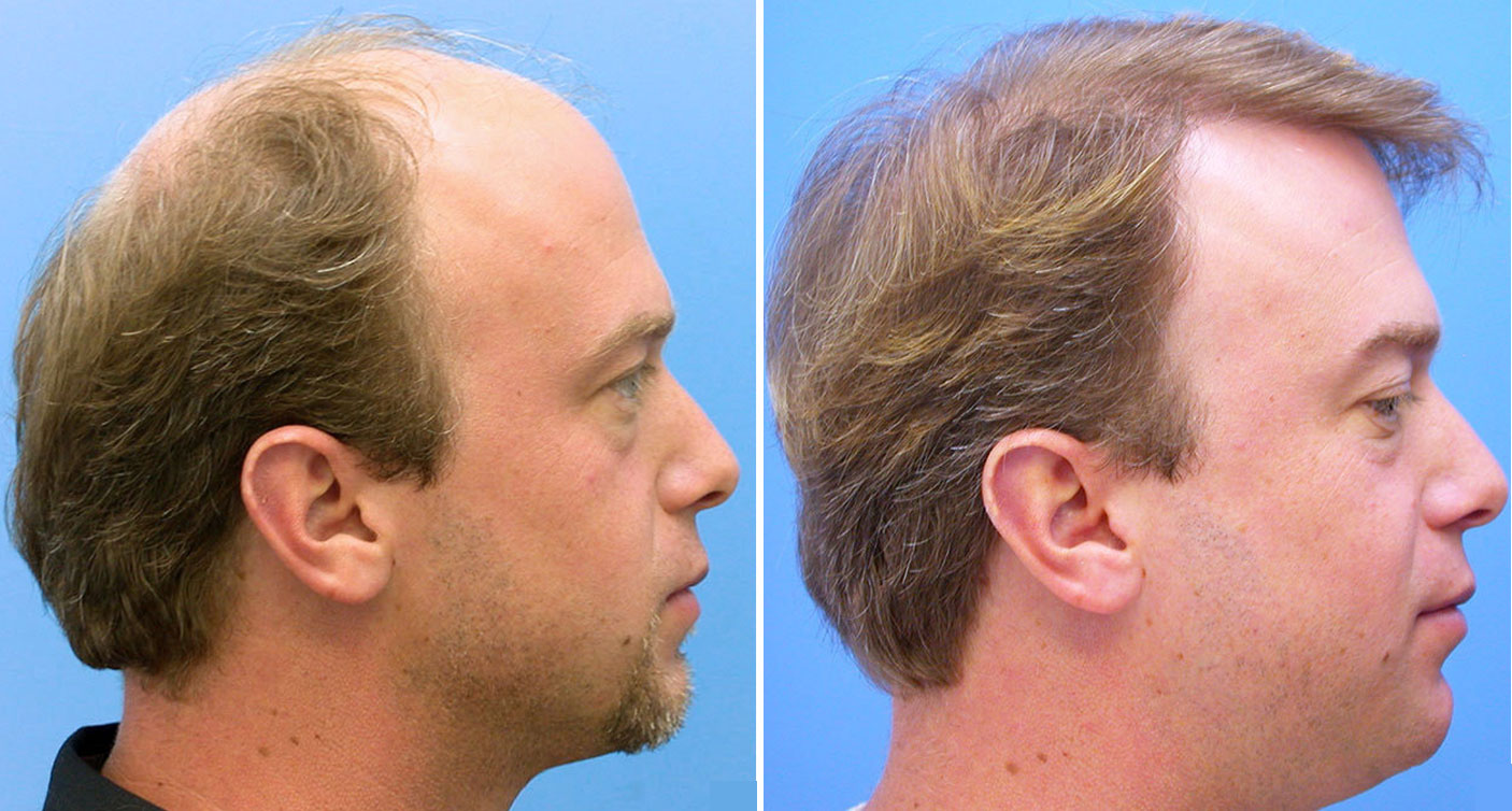 Get Your Hair Transplant In India Done By Expert Health Beauty